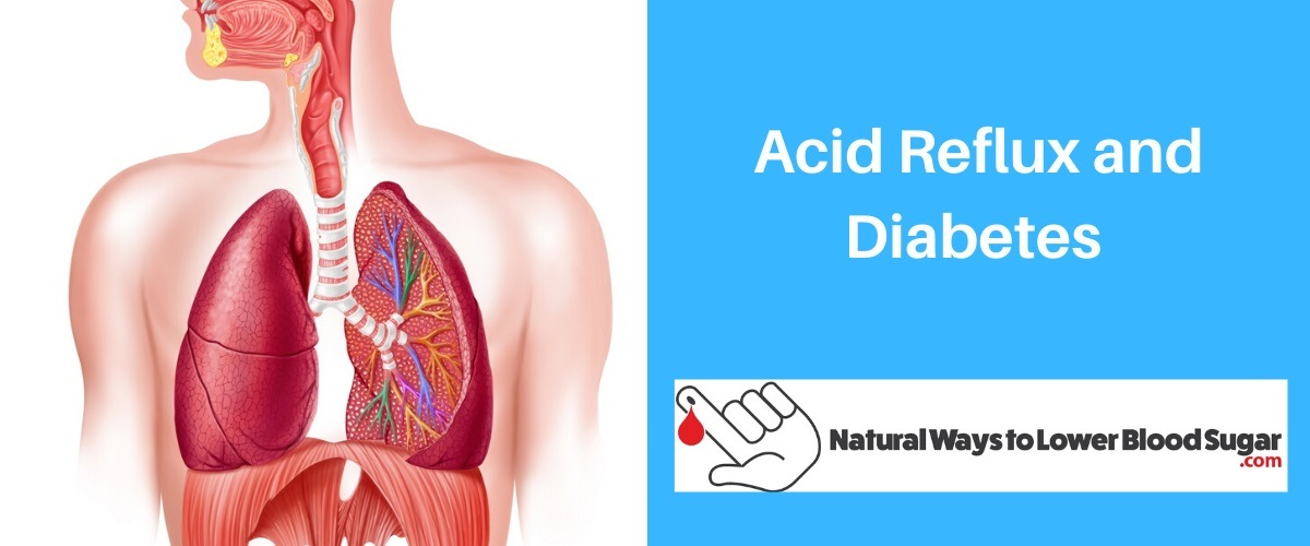Acid Reflux and Diabetes