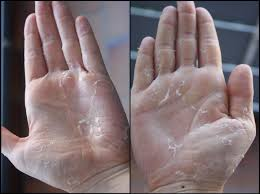 Dry skin on hands