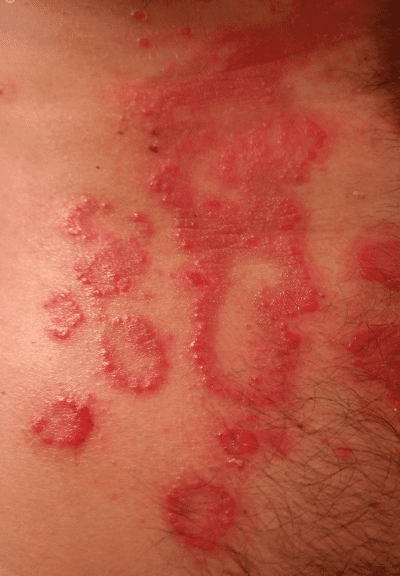 Psoriasis caused by inflammation