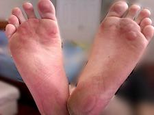 Diabetic Blisters on Feet