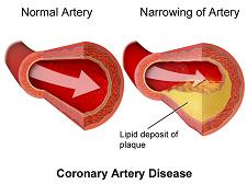 Plaque in the arteries