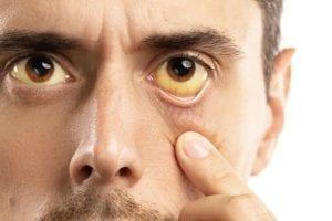 Man With Jaundice Eyes